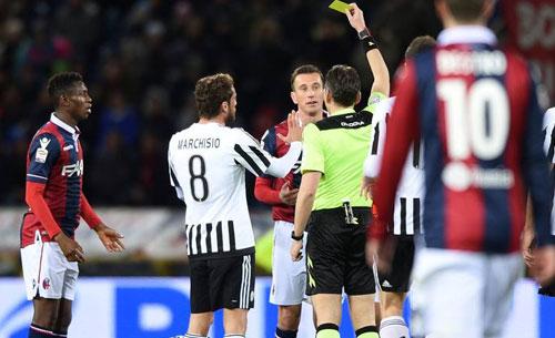 FOTO – Juventus-Verona, manca un clamoroso rigore per gli scaligeri! Alvino incredulo