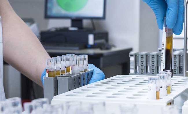 Coronavirus, in arrivo 200 milioni di dosi del vaccino AstraZeneca entro fine 2020